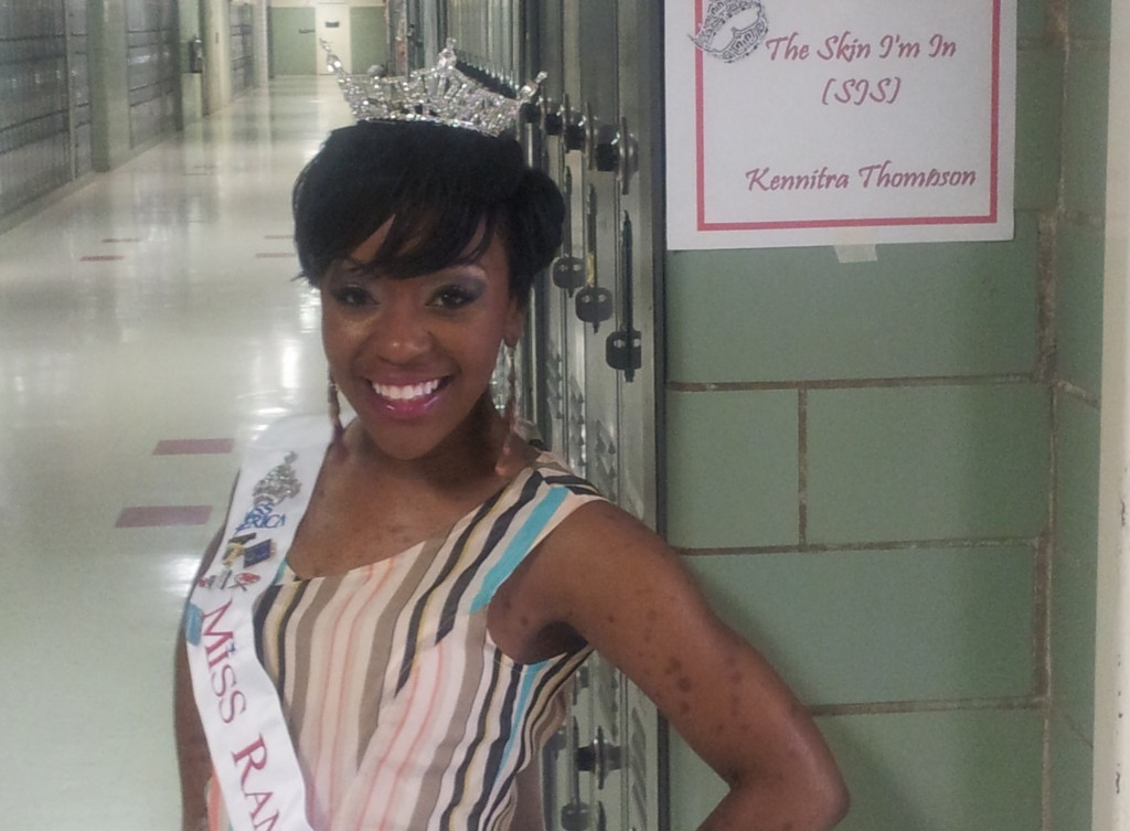 Kennitra Thomas is raising awareness about Steven Johnson Syndrome as she competes for the Miss Mississippi crown.